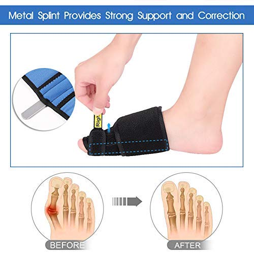 Bunion Corrector Splint Brace, Night Bunion Relief Protector Big Toe Straightener with Metal Splint Support and Adjustable Strap for Hallux Valgus, Hammer Toe, Bunion Surgery Pain Relief (Pair)